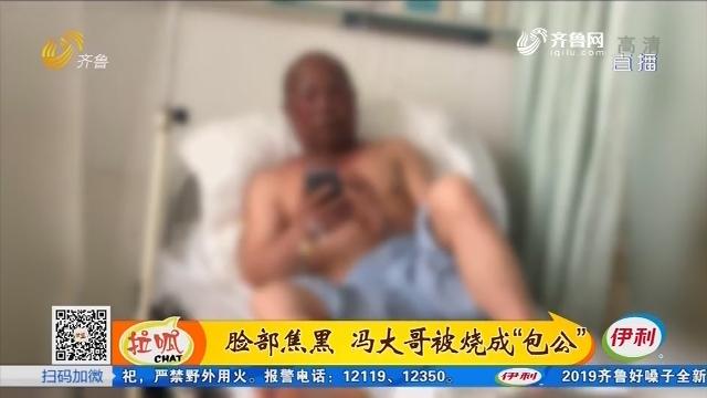 潍坊:配农药 突然窜出个火球