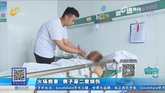 济南:火场救妻 男子深二度烧伤
