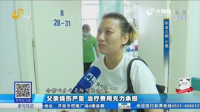 济南:父亲烧伤严重 治疗费用无力承担