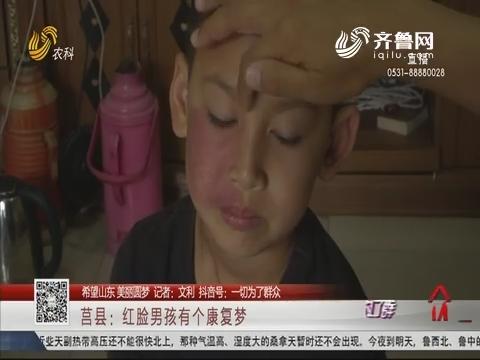 【希望山东 美丽圆梦】莒县:红脸男孩有个康复梦