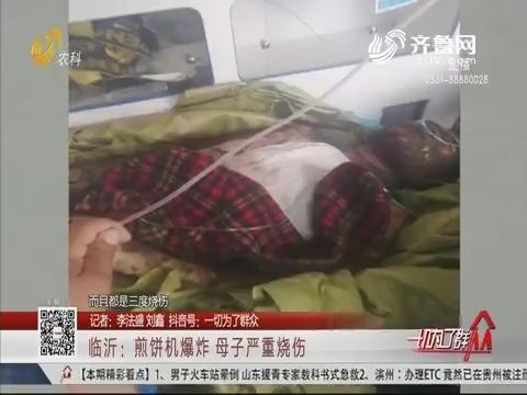 临沂:煎饼机爆炸 母子严重烧伤