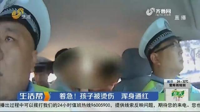 潍坊:着急!孩子被烫伤 浑身通红