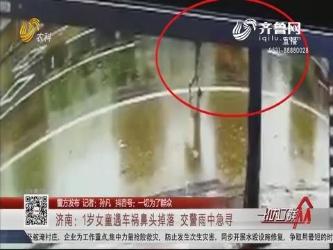 济南:1岁女童遇车祸鼻头掉落 交警雨中急寻