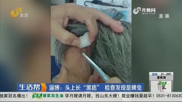 """淄博:头上长""""黑痣"""" 检查发现是蜱虫"""
