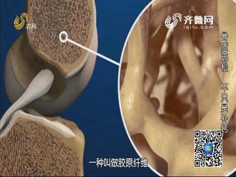 20191222《名医话健康》:名医高毅——骨质疏松 不只是补钙