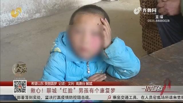 """【希望山东 美丽圆梦】揪心!聊城""""红脸""""男孩有个康复梦"""