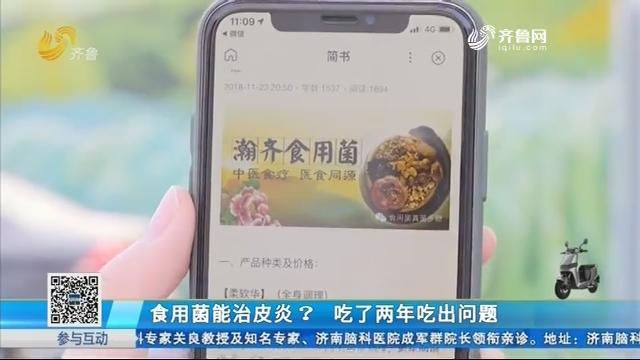 济南:食用菌能治皮炎?吃了两年吃出问题