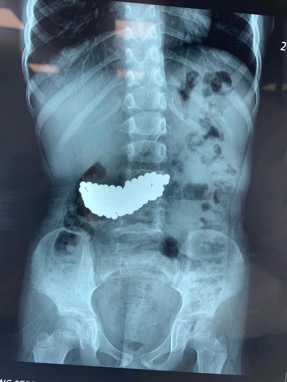 ?5岁女童误吞190颗磁珠 待胃里2月惊呆医生