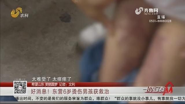 【希望山东 美丽圆梦】好消息!东营6岁烫伤男孩获救治