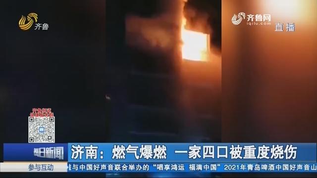 济南:燃气爆燃 一家四口被重度烧伤