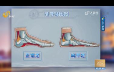 20210220《健康山东》:脚印这个样,你可能是扁平足