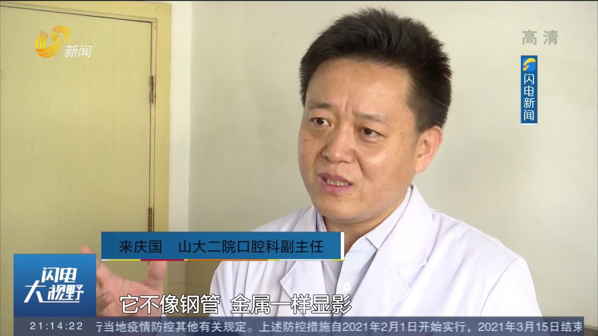 """济南:男子遭木棍插脸穿喉 医生""""面中取木""""化险为夷"""