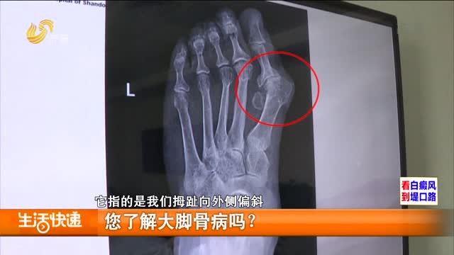 您了解大脚骨病吗?