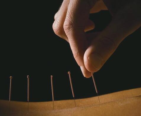 中医针灸方法帮女性调理内分泌