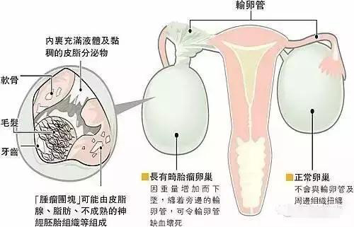 """健康中国行公益援助 济南和谐巧取女子肚中长毛""""怪胎"""""""