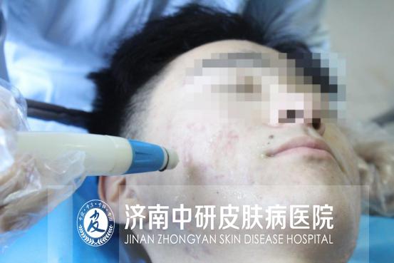 济南中研消灭痘痘不留痕 从此不做低头族